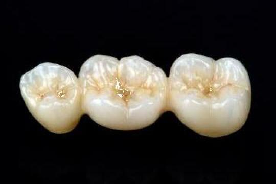 Lucrari dentare zirconiu cu aplicare ceramica + CAD-CAM